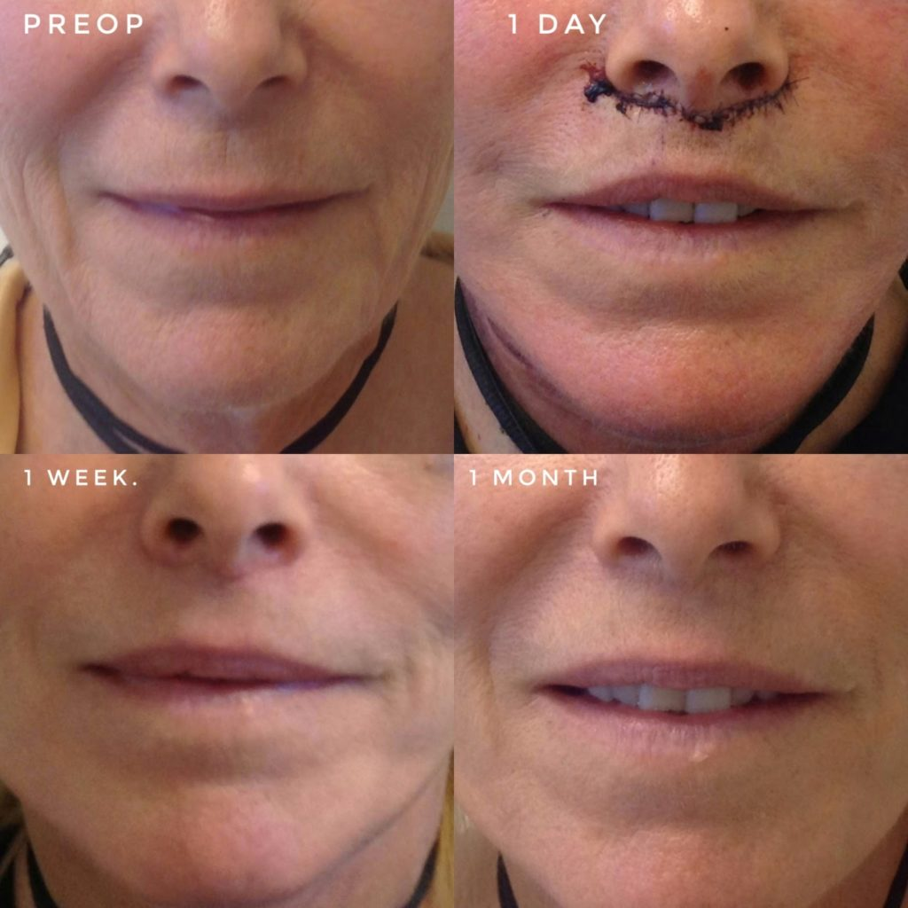 Facial Feminization Surgery | Los Angeles | San Francisco